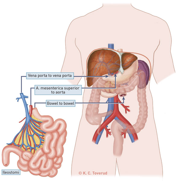 Intestinal And Multivisceral Transplantation In Patients