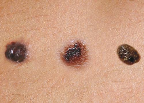 benign cancer mole negi genitali poze