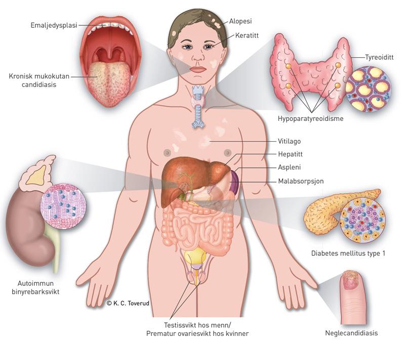 Diabetes type 1 symptomer barn