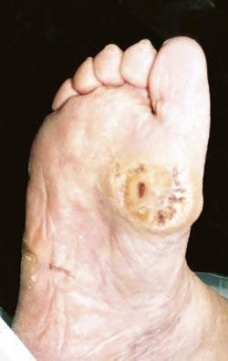 sår på foten