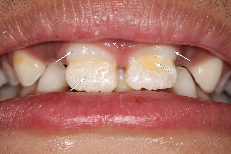 hvite flekker på tennene